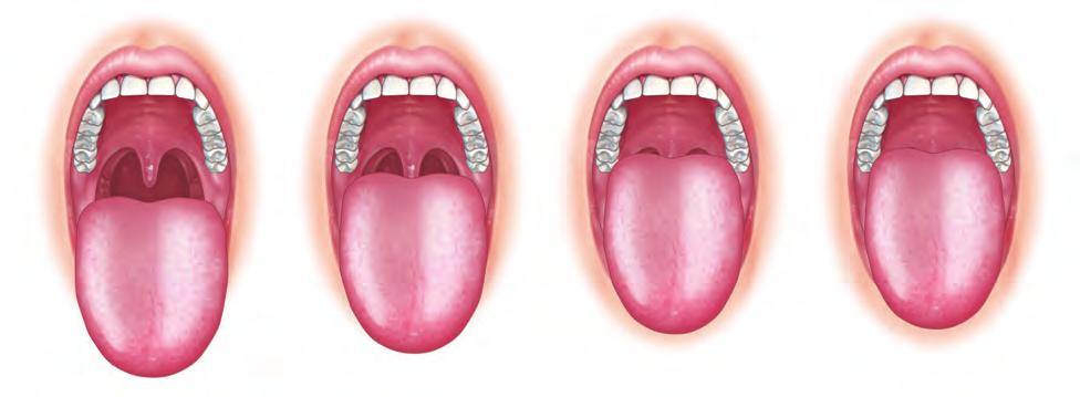 AIRWAY MANAGEMENT 29 box 2-1 lemon assessment for difficult intubation (continued) Class I: soft palate, uvula, Class II: soft palate, Class III: soft palate, Class IV: hard palate Mallampati