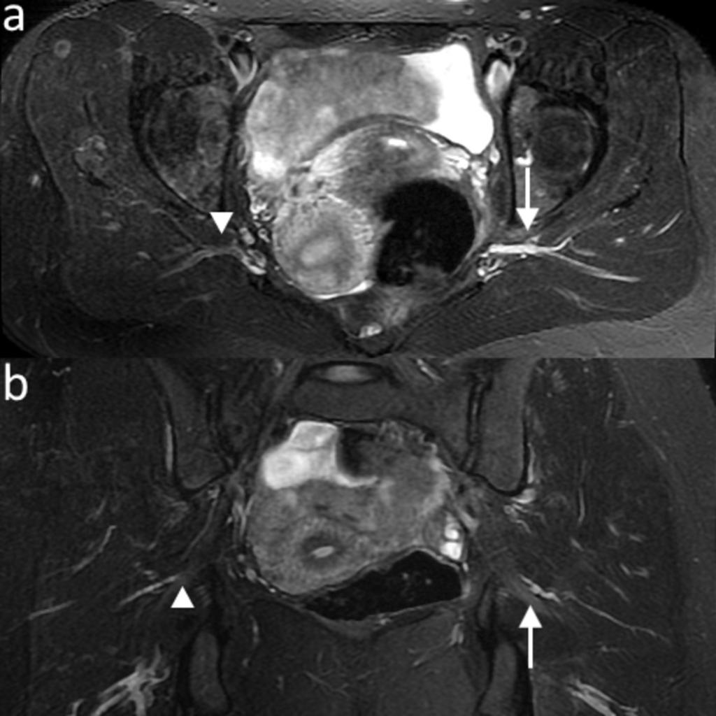 Fig. 5: Normal appearance of the right sciatic nerve on consecutive axial T1-weighted images - a) level of the sciatic notch; b) level of the ischial tuberosity (sciatic nerve (arrow)). Fig.