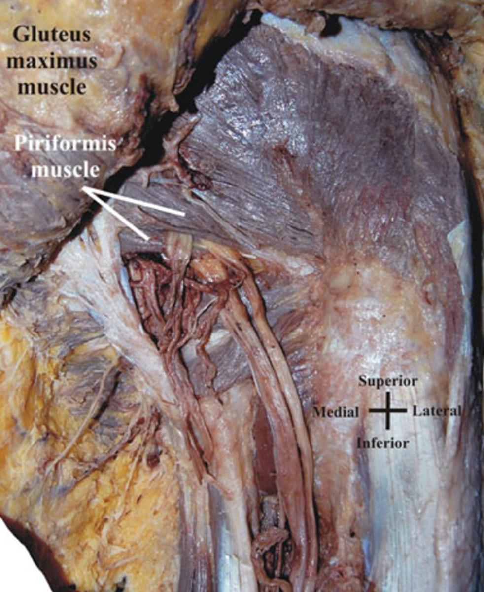 Fig. 8: Type B course of the sciatic nerve into the infra-piriform space -