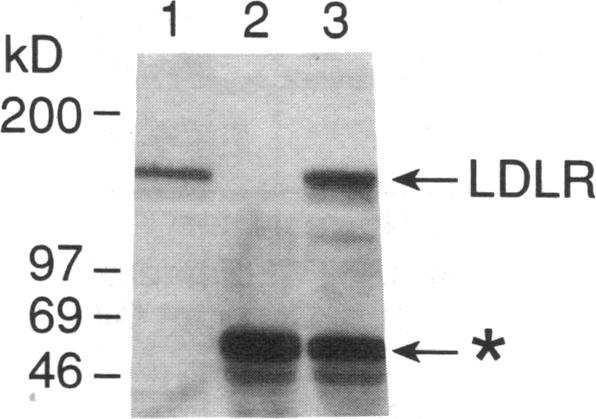 The positions of migration of apo -I00, apo -48, albumin (Alb.), apo E, and apo A-I are indicated. type mice to clear '25I-labeled lipoproteins from the circulation (Fig. 6).