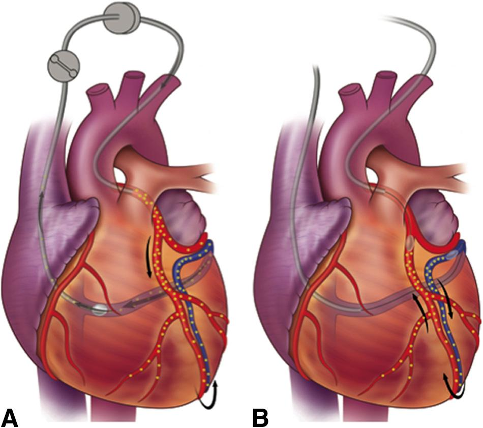 784 Circulation Research March 2, 2012 An approach that focuses on enhancing the vector residence time in the coronary circulation is coronary venous blockade.