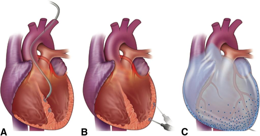 Tilemann et al Cardiac Gene Therapy 785 Figure 5. Direct myocardial injection and pericardial injection.