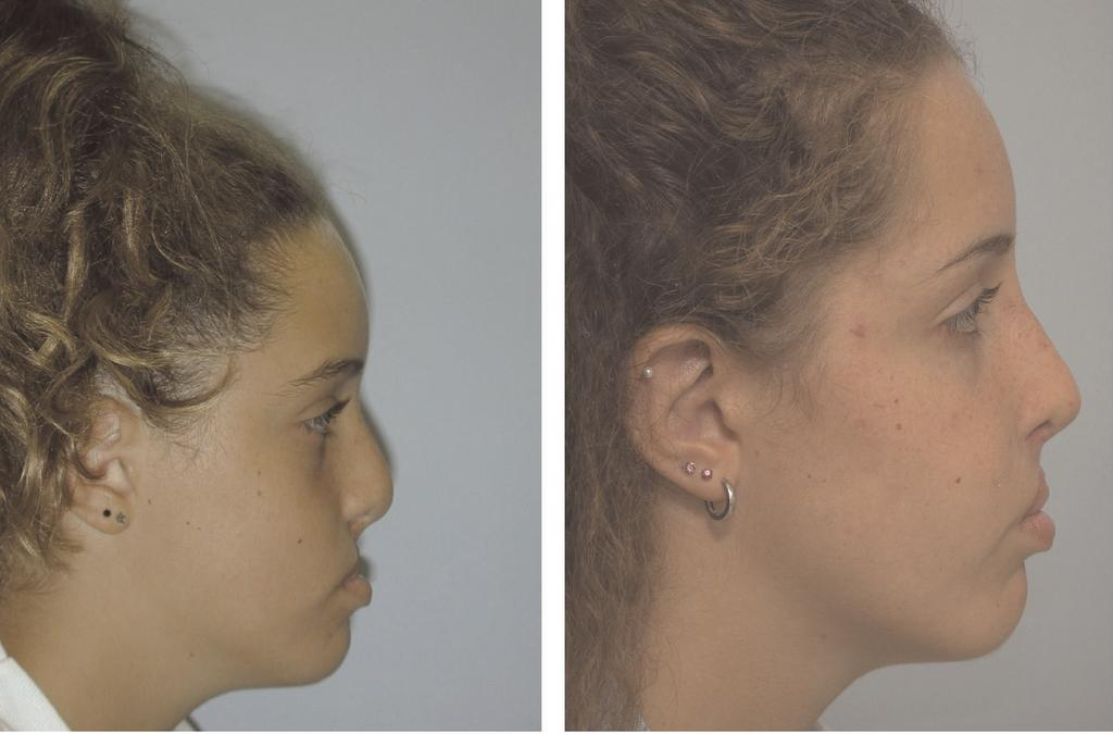 THE JOURNAL OF CRANIOFACIAL SURGERY / VOLUME 18, NUMBER 4 July 2007 Fig 16 Lateral views of patient shown in Figures 4 and 13 before and after maxillary advancement, genioplasty, lip revision, and