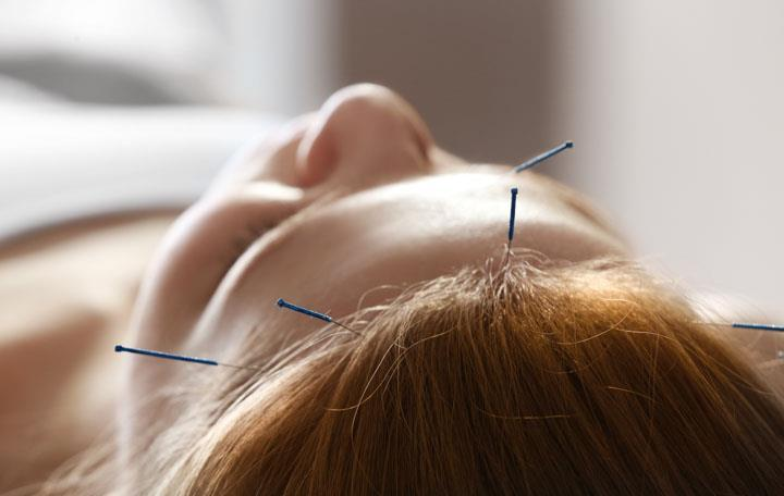 Acupuncture Headache Relief Discovered Published by HealthCMi on November 2017 Acupuncture enhances positive patient outcome rates for patients suffering from headaches.