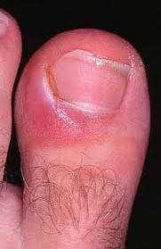 Signs, Symptoms of Infection Localized infections Redness, pain, warmth,