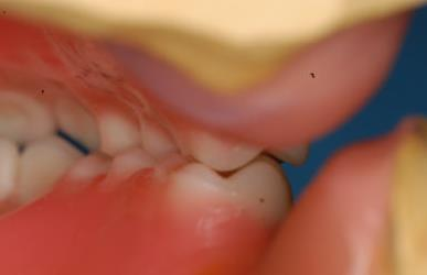 Any contact between teeth of opposing dental arches; usually, referring to contact between the occlusal surface.