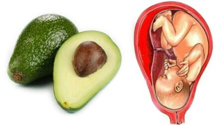 CONSTIPATION - HEMORRHOIDS Diet Recommendation Avocado Sweet