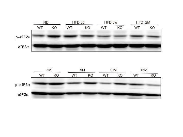 Supplemental Figure 9 a b Supplemental Figure 9; Expression of p-eif2α by HFD feeding and aging.