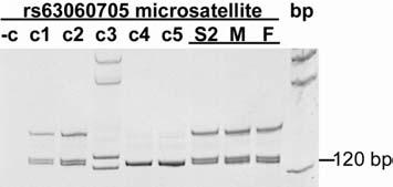 2164 J. Mitchell et al.: Discussion Fig. 3. ZAC gene 3 UTR microsatellite ruled out paternal duplication.