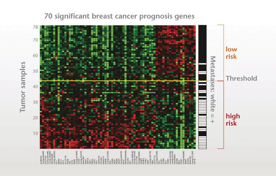 Figure 1. Micro-array technology used for the 70-gene signature The remaining 34 patients developed distant metastases within 5 years after diagnosis and were defined as poor prognosis or high risk.