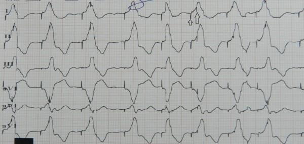 The first three complexes show p waves followed by paced QRS complex with left superior axis consistent with atrial sensed right ventricular apical pacing.
