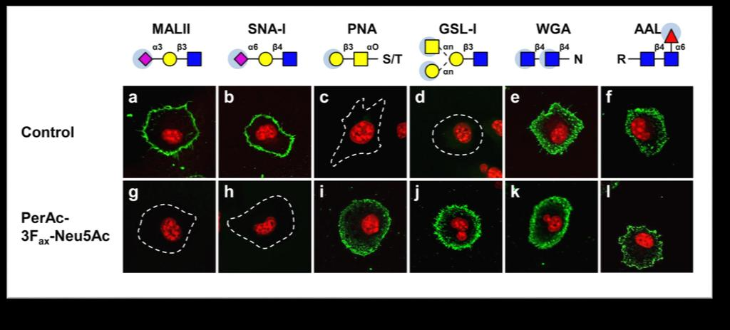 Inhibition of sialylation slows tumor growth and metastasis Cell culture with 64mM concentration of inhibitor leads to almost complete desialylation Cell