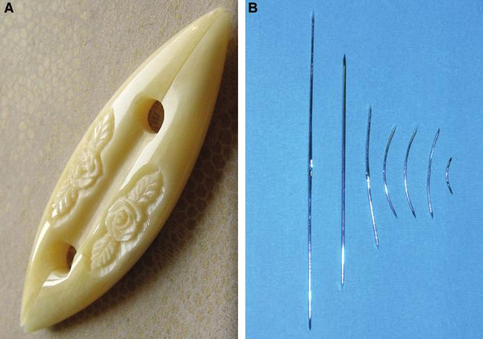 Tiryaki 177 Figure 1. The traditional shuttle (A) and its surgical alteration (B).