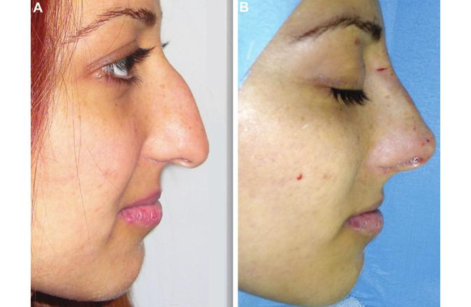 180 Aesthetic Surgery Journal 30(2) Figure 3. (A) A 24-year-old woman who presented with a heavy nasal hump. (B) The masking effect of the suspension suture is shown immediately postoperatively.