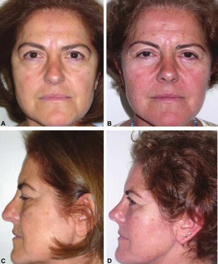 Tiryaki 181 Figure 4. (A, C) A 58-year-old woman who presented with concerns about facial aging.