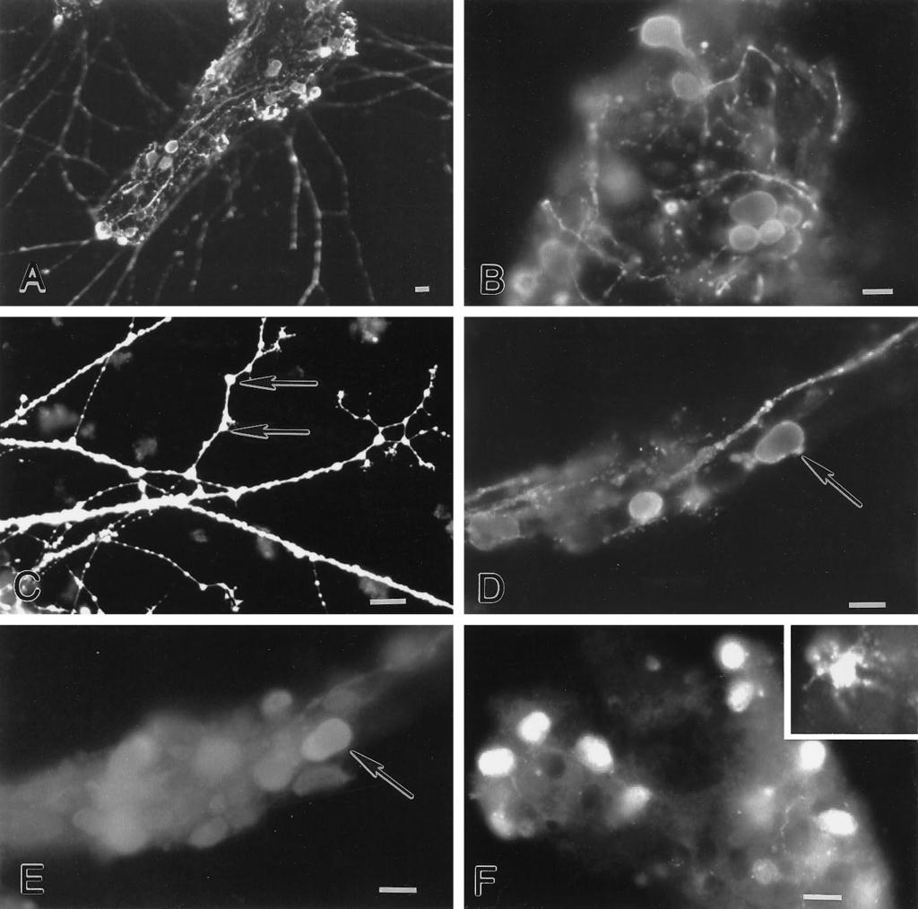 8810 J. Neurosci., November 15, 1997, 17(22):8804 8816 Kirchgessner et al. Excitotoxicity in the ENS Figure 5. Glutamate-immunoreactive neurons are found in cultured myenteric ganglia.