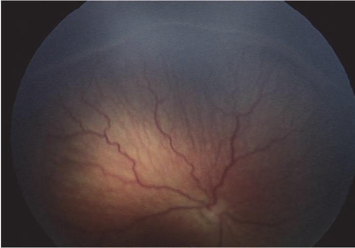 Plus disease: These are additional signs indicating the severity of active retinopathy of prematurity disease. 1.