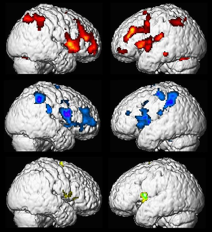 Functional pain Physically-induced pain Hypnotically-induced pain Imagined pain 8 participants (>8 on Harvard scale) fmri Three conditions All in hypnosis All
