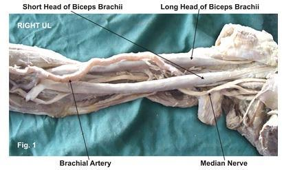 140 P a g e Further, knowledge of the incidence of humeral head of biceps brachii will facilitate preoperative diagnosis as well as the surgical procedures of the upper limb [5,9].