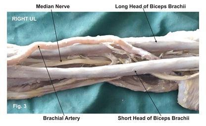 141 P a g e Figure 3. The photographic presentation of course of the median nerve and the brachial artery in between the two separate heads of the biceps brachii muscle. Figure 4.