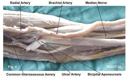 DISCUSSION Anatomy is a morphological science which cannot fail to interest the clinicians. The biceps brachii has been stated as one of the muscles that shows frequent anatomical variations [2-5].