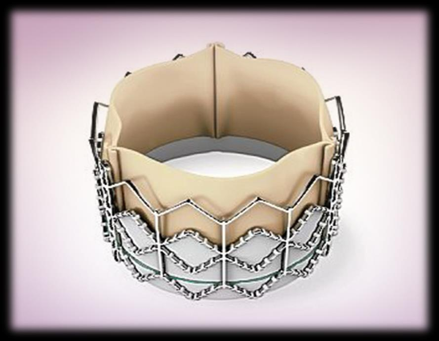 Global Heart Valve Devices Market: Analysis By Procedure (Replacement & Repair), Replacement