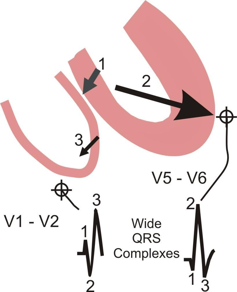 Right Bundle Branch Block (RBBB): 1. Septum depolarization occurs first inscribing an initial upward deflection in V1 - V2 and a small downward deflection in V5 - V6. 2.