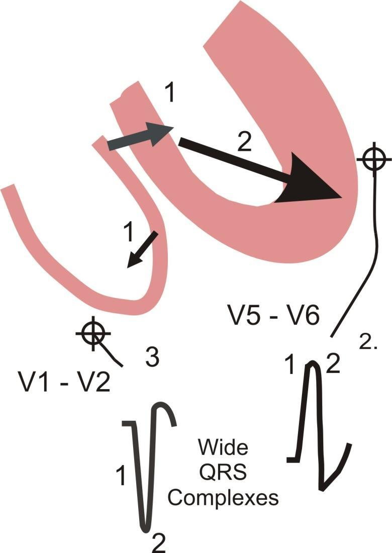 Left Bundle Branch Block (LBBB): 1. Depolarization enters the right side of the right ventricle first and simultaneously depolarizes the septum from right to left.