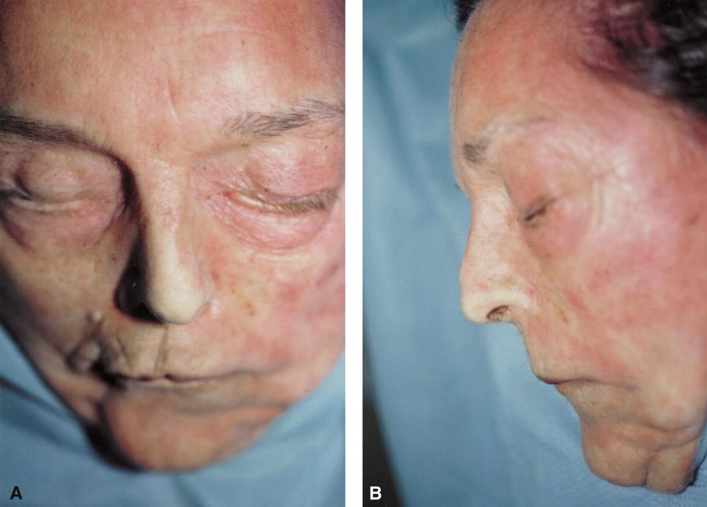 The upper buccal sulcus approach, an alternative for post-trauma rhinoplasty 219 Figure 1 Fresh cadaver before dissection, displaying deviation (1A-AP view) and dorsal hump (1B-lateral view).