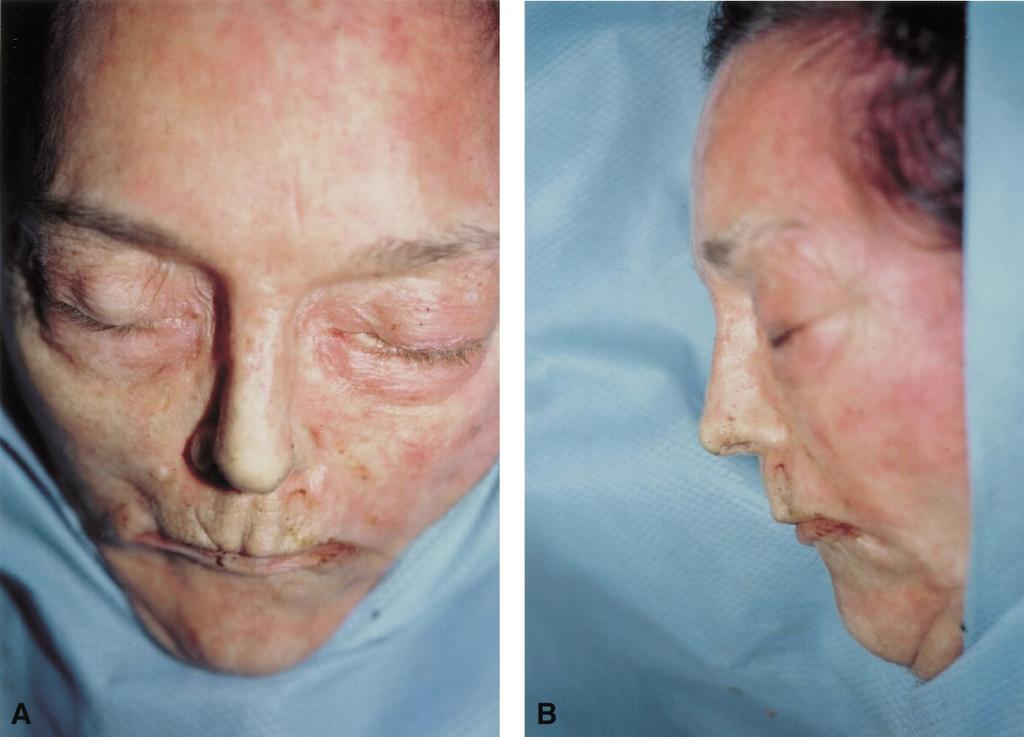 220 British Journal of Plastic Surgery Figure 3 AP (3A) and lateral (3B) views of the same