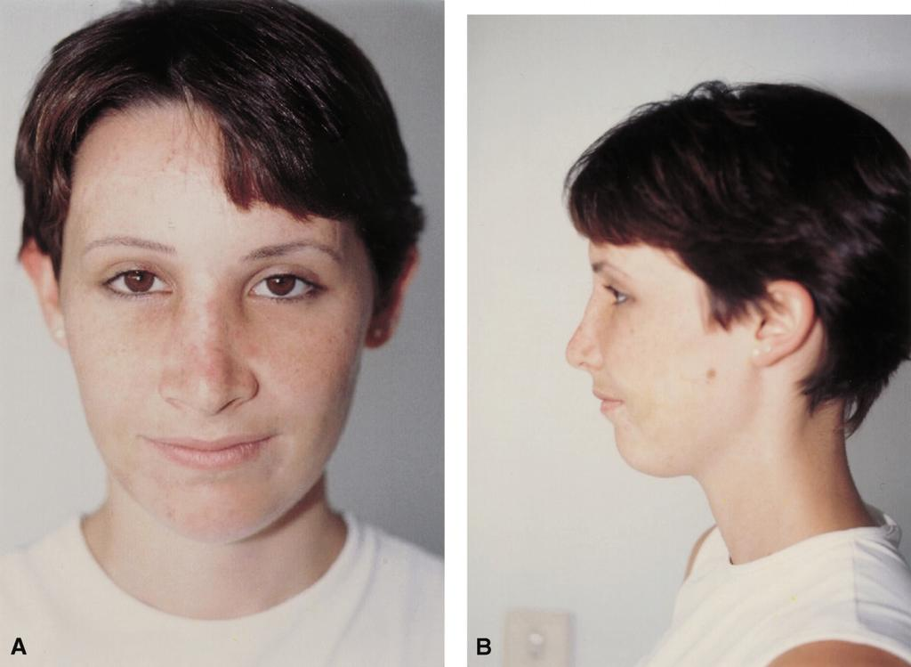 that dorsal hump and nasal deviation resulting from a trauma can be successfully treated from the buccal approach alone.