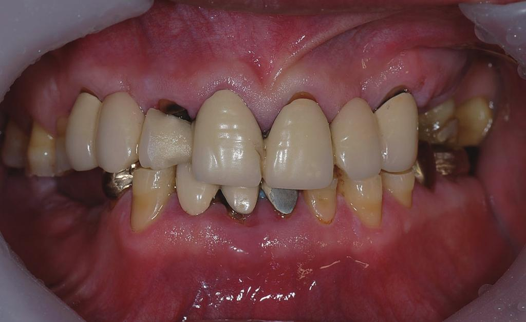 Park C Case Report A 63-year-old Korean man visited Department of Prosthodontics at Chonnam National University, Gwangju, Korea, with chief complaints of overall attrition of teeth and discomfortness