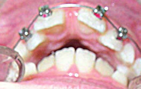 Space is gained for 33 & 43 by the advancement of the incisors: Md1 to A-pog line = -2 mm and Md1 to NB = 3 mm & 21,