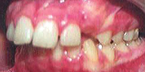 272 Chapter 16 Clinical cases: mixed dentition and adolescent, CLII non-extraction Steep MPA (46 ) Vertical growth pattern