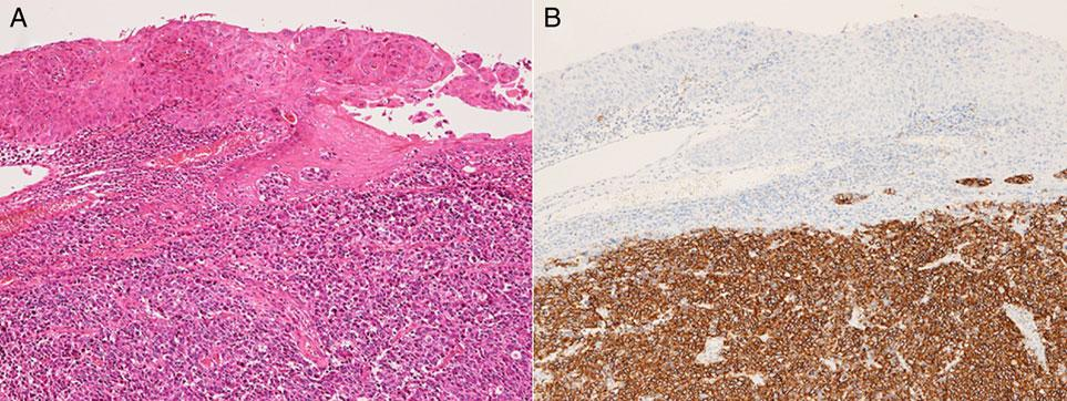 332 Neuroendocrine carcinoma in the head and neck Figure 4. Case 4: combined small-cell carcinoma and squamous cell carcinoma. (A) H&E staining. (B) CD56. Figure 5.