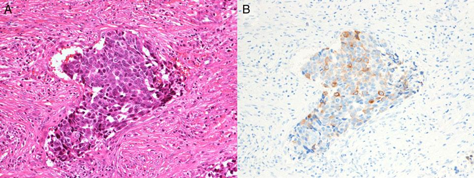Jpn J Clin Oncol, 2015, Vol. 45, No. 4 333 Figure 7. Case 7: squamous cell carcinoma with neuroendocrine features. (A) H&E staining. (B) Synaptophysin. Figure 8.