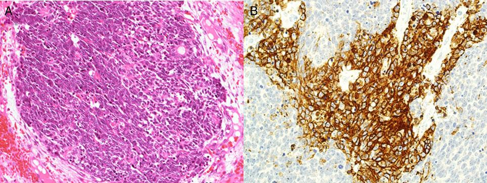 The findings described above were consistent with metastatic spindle cell carcinoma with neuroendocrine features.