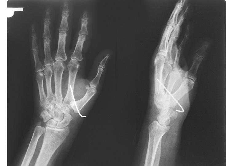 bolestivosť, postupne znížená Najčastejším klinickým príznakom je úchopová 1. BURTON, R. I., PELLEGRINI, V. D. Jr.: Surgical management of basal joint arthritis of the thumb. Part II.