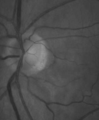 Pachymetry: 587u, 586u Anterior segment unremarkable ACA open; AC - D&Q Ophthalmic findings Lens