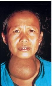 Figure2 : Endemic goiter is caused by insufficient iodine in the diet.