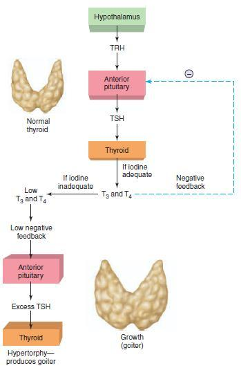 Figure 3: How iodine deficiency causes a goiter?