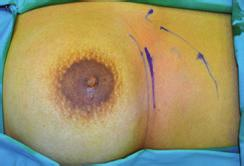 Plastic Surgery International 3 (a) (b) (c) (d) Figure 1: (a) Diagram showing the skin marking of the submammary incision.