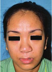 Plastic Surgery International 5 (a) (b) Figure 2: A 24-year-old lady with left unilateral cleft lip and palate.