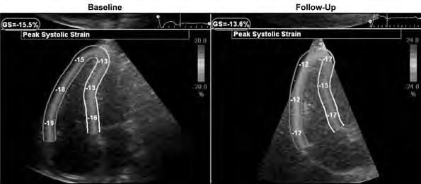 Chapter 6 Changes in RV performance and RV longitudinal peak systolic strain during follow-up In Table 4, the changes in RV performance and RV LPSS are shown (baseline vs. 4.2 ± 1.7 years follow-up).