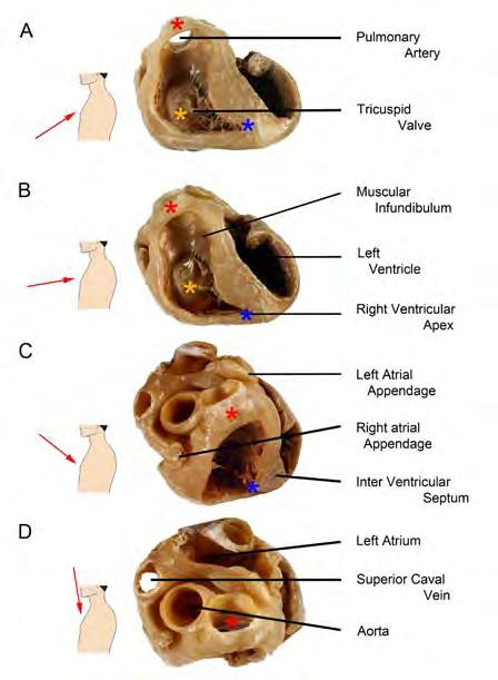 INTRODUCTION The right ventricle in adults The right ventricle is located behind the sternum and has a complicated morphology.