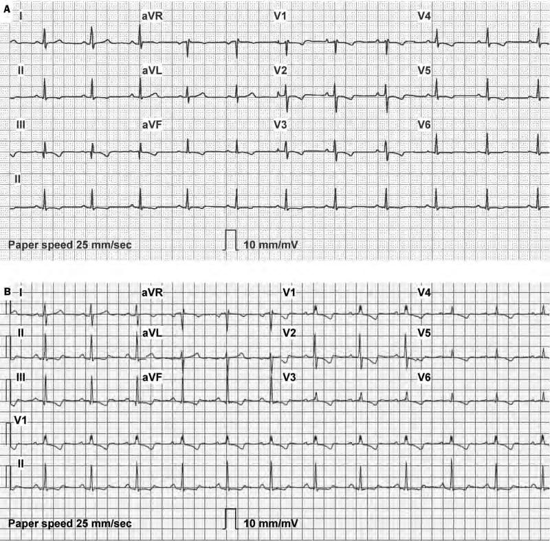 THE ELECTROCARDIOGRAM IN PULMONARY HYPERTENSION Case In August 2005, a 54-year-old female was referred to our centre for additional evaluation into the aetiology of recently established severe
