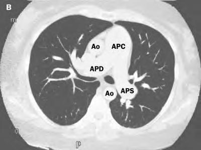 CT image of the aorta and pulmonary arteries. The diameter of the common pulmonary artery is almost twice that of the ascending aorta, and the right and left pulmonary arteries are also dilated.