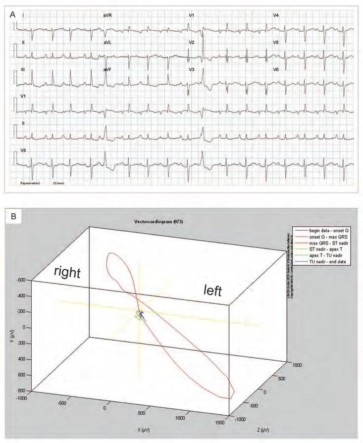INTRODUCTION Figure 4. Electrocardiographic assessment of right ventricular overload.