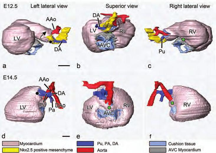 MORPHOGENESIS OF OUTFLOW TRACT ROTATION Figure 3. Positional changes of the aorta and pulmonary artery during outflow tract development: The pulmonary push concept. a-c.