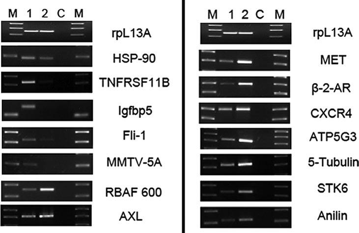 Expression of cathepsin, α-2-type I collagen, TGF-β induced protein, lumican, decorin and gremlin was assessed in HFF wild-type (lane 1) and HFF cells with a reduced Ets-1 expression